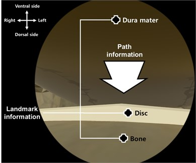 3D geometric information including landmark information (bone, disc, dura mater)  and path information (catheter insertion path)