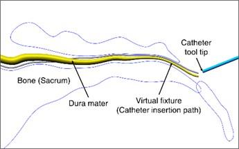 Epiduroscopy models