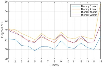 Temperature values of 15 measurement points in hand: blue line – before the therapy;  orange line – during the therapy, after 7 minutes; yellow line – just after the therapy;  purple line – 7 minutes after the therapy
