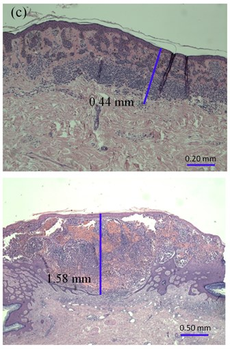 The thickness of: a) melanocytic nevi (above) and melanoma (below) estimated manually,  b) automatically using 22 MHz ultrasound, c) histologically by QCapture Pro 7 software