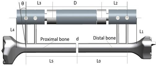 The physical model of fixator-bone system. L0=L5=83 mm; L2=L3=40 mm;  D=90 mm; d=4 mm, L4=60 mm, θ=0-30°