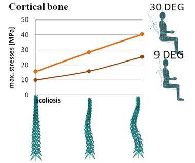 Maximum stresses in spine with different configurations of geometry in cortical bone