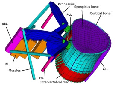 Finite element model of: a) vertebra with precessus, muscles and ligaments, b) intervertebral disc