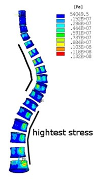 Equivalent von Misses stress distribution in: a)-b) no scoliotic spine, a) cortical bone, b) cancellous bone, c)-d) scoliotic spine, c) cortical bone, d) cancellous bone