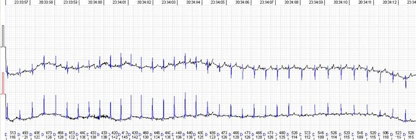 QRS morphology and voltage shift