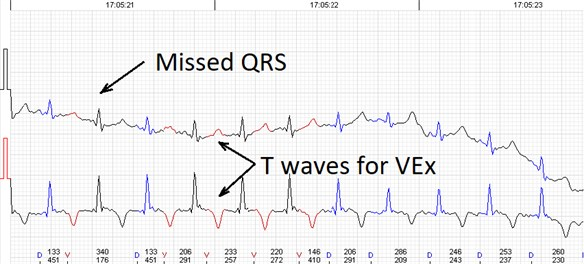 Errors of the automated analysis leading to false arrhytmia or heart rate variability parameter calculations if not corrected manually. a) Demonstrates a case of rather low wave amplitudes leading to relatively 'deep' T wave being considered as a QRS complex, marked as 'D' (defined event);  b) shows a case of a single unidentified QRS complex and several T waves marked  as ventricular extrasystole (VEx), marked as 'V' (ventricular event); c) a combination  of errors where normal QRS complexes are defined as VEx and T waves defined as QRS;  d) software failed to detect a sequence of several low amplitude QRS complexes