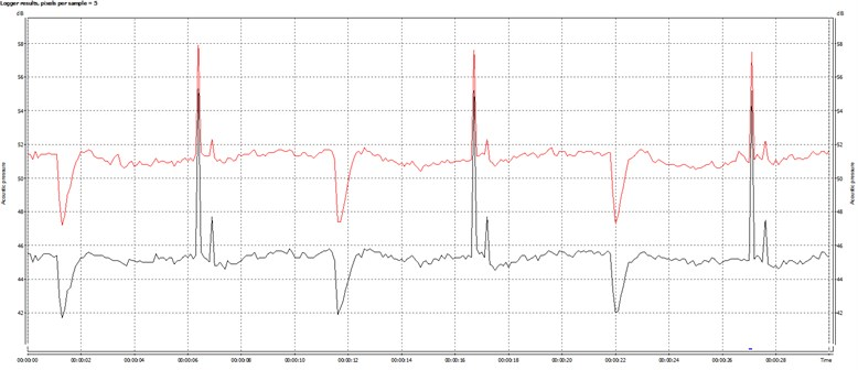 Sound pressure level – Leq(red line), A-weighted sound pressure level – LAeq (black line)  time courses during device nominal work (example 30 second of work)