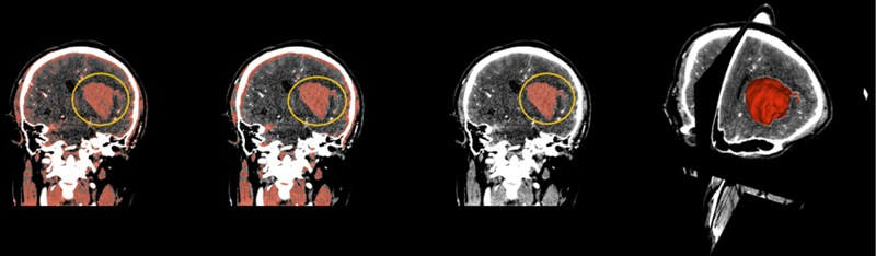(From left to right) The hematoma in the yellow circle is what we want to separate, using thresholding in the above order, then using smoothing to optimize staining, and finally using Islands to separate the hematoma. On the far right is the fusion of the hematoma and the three-dimensional map