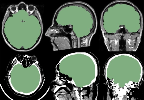Above is the reference of the mask, below is the CT data we imported. It can be seen  that the mask of the brain part of the CT data is very good, and the whole brain is isolated