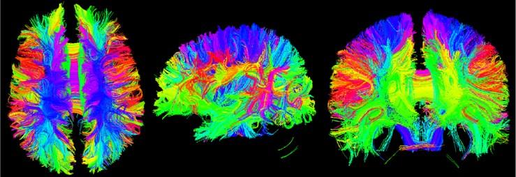Three-bit imaging of brain fiber bundles