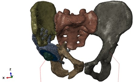 "Finite element model of the system ""skeleton – hip implant"""