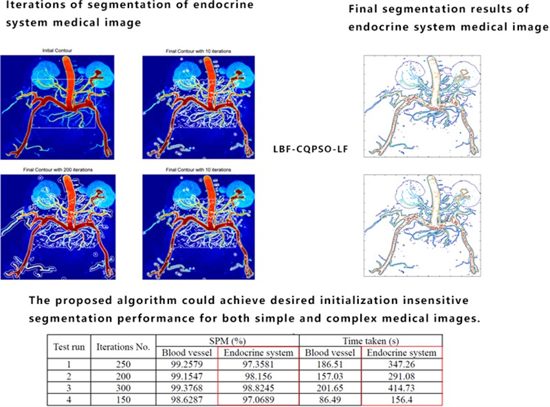 Level set medical image segmentation aided by cooperative quantum particle optimization with Lévy flights