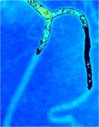 Iterations of segmentation of blood vessel image