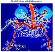 Iterations of segmentation of endocrine system medical image