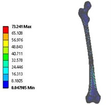 Vonmises stress distribution: a) coxa valga, b) coxa norma, c) coxa vara  in 3D model static analysis