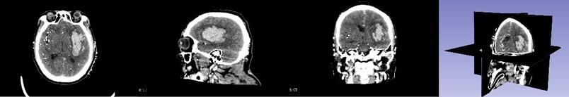 CT image