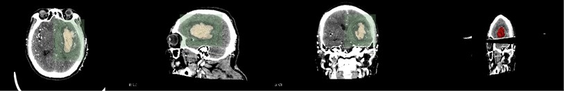 Hematoma reconstruction