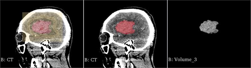 Segmentation results of the FCM algorithm on the median sagittal section