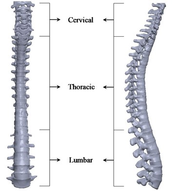 Front view (left), lateral view (right) of the CTL spine with intervertebral discs