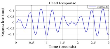 a) Undamped response of pilot's head, b) damped response of pilot's head