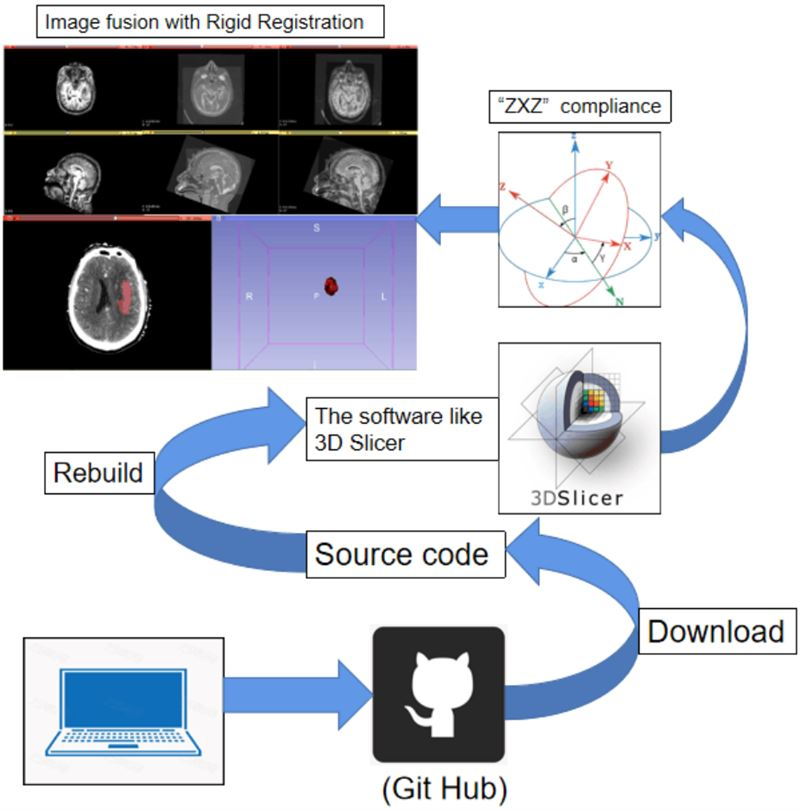 Secondary development process of slicer based on workflow of intracranial hematoma