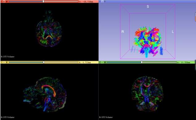 Neural bundle modeling in brain
