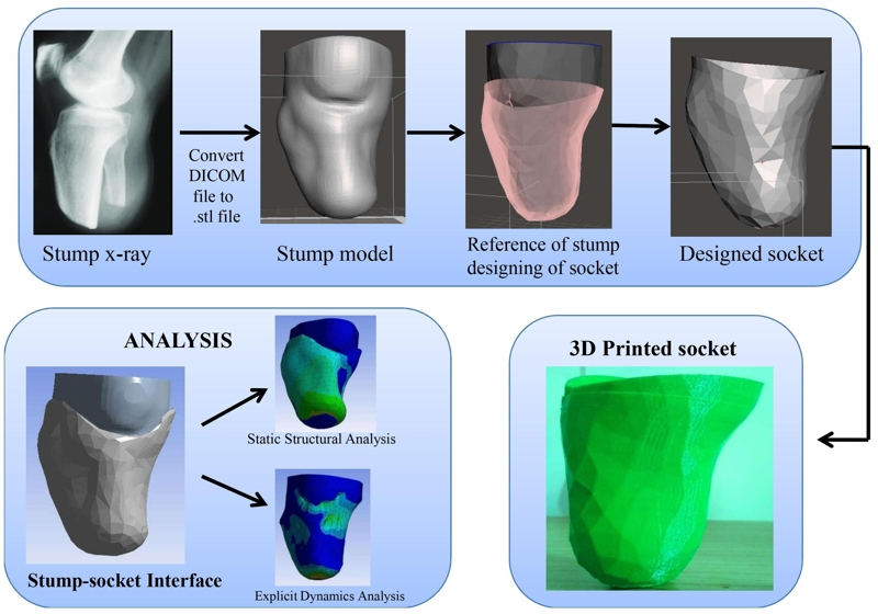 Design and development of patient-specific prosthetic socket for lower limb amputation