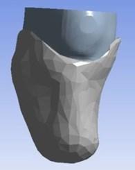 Stump-socket CAD model
