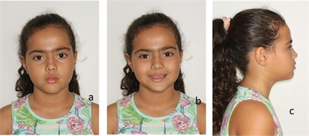 Patient's registries in 2016. Pictures were taken after the use of SN3 with Eschler's arch.  Face photographs: a) frontal profile; b) frontal profile – smile; c) right profile; d) left profile; e) teleradiograph; f) intraoral – right profile; g) intraoral – occlusion; and h) intraoral – left profile