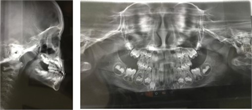 Extra- and intraoral photographs (upper and lower section, respectively);  Teleradiograph and panoramic radiography (second line)